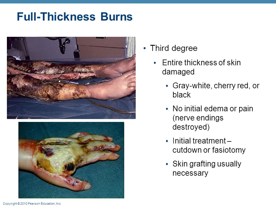 Full-Thickness Burns Third degree Entire thickness of skin damaged