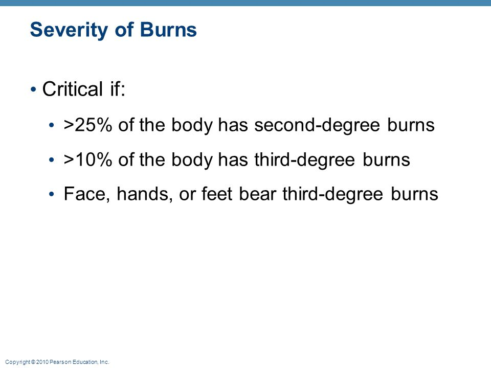 Severity of Burns Critical if: