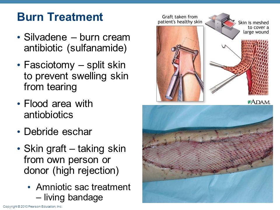 Burn Treatment Silvadene – burn cream antibiotic (sulfanamide)