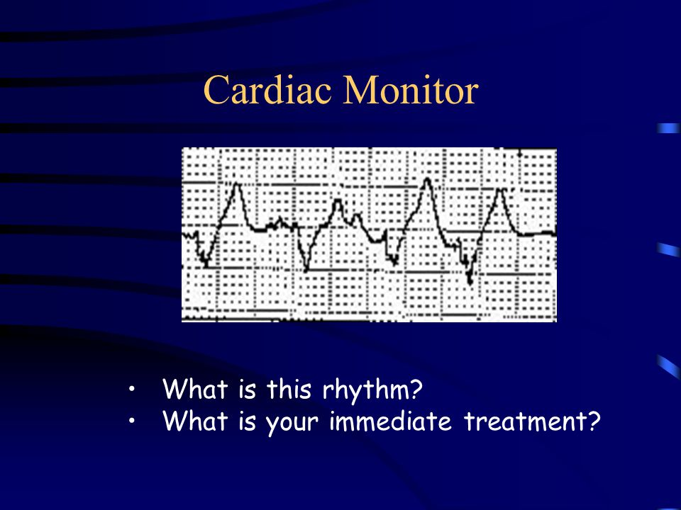 Cardiac Monitor What is this rhythm What is your immediate treatment
