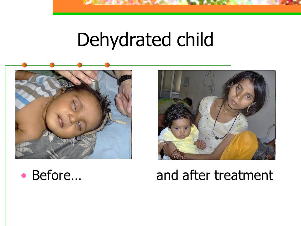 Dehydrated child Before… and after treatment