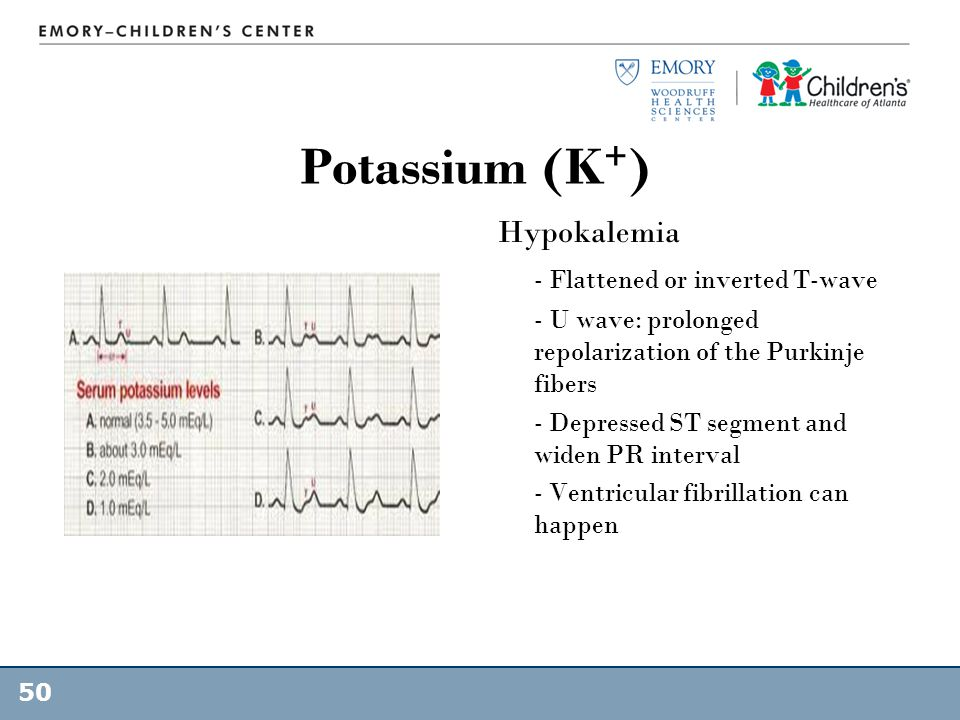Potassium (K+) Hypokalemia - Flattened or inverted T-wave