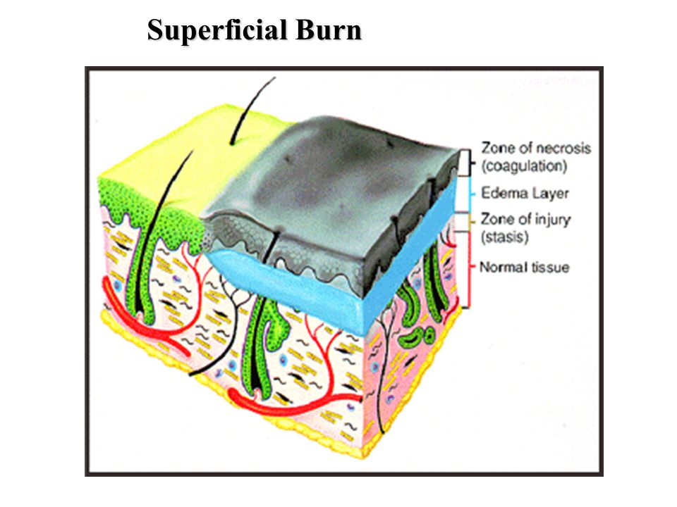 Superficial Burn