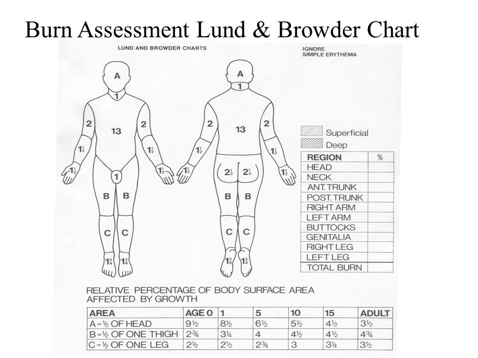 Burn Assessment Lund & Browder Chart
