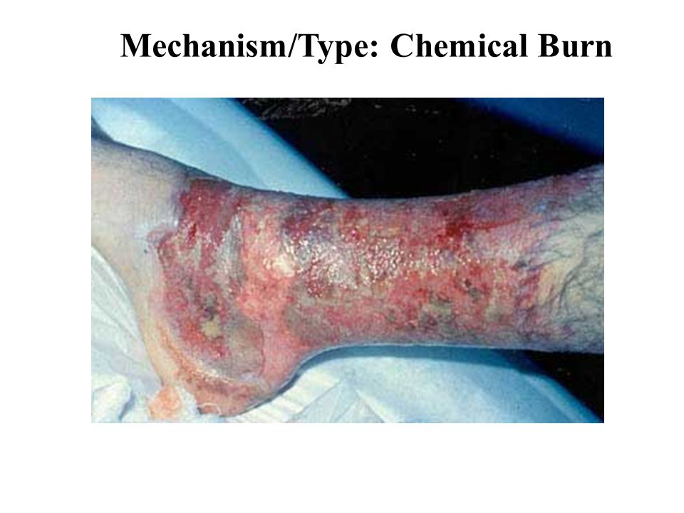 Mechanism/Type: Chemical Burn