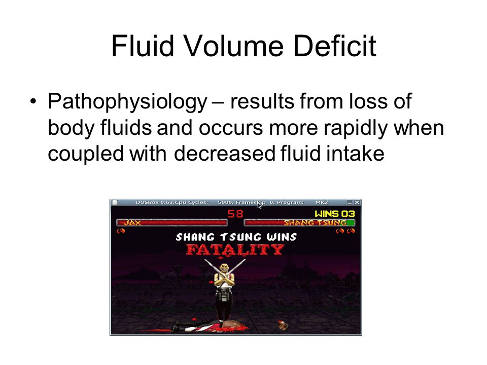 Fluid Volume Deficit Pathophysiology – results from loss of body fluids and occurs more rapidly when coupled with decreased fluid intake.