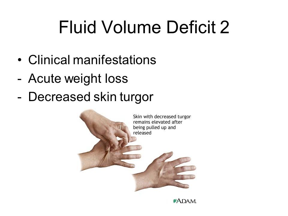 Fluid Volume Deficit 2 Clinical manifestations Acute weight loss
