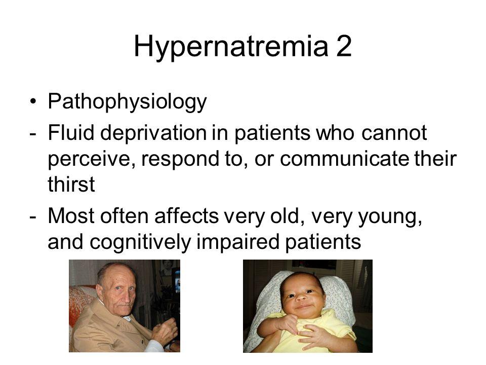 Hypernatremia 2 Pathophysiology