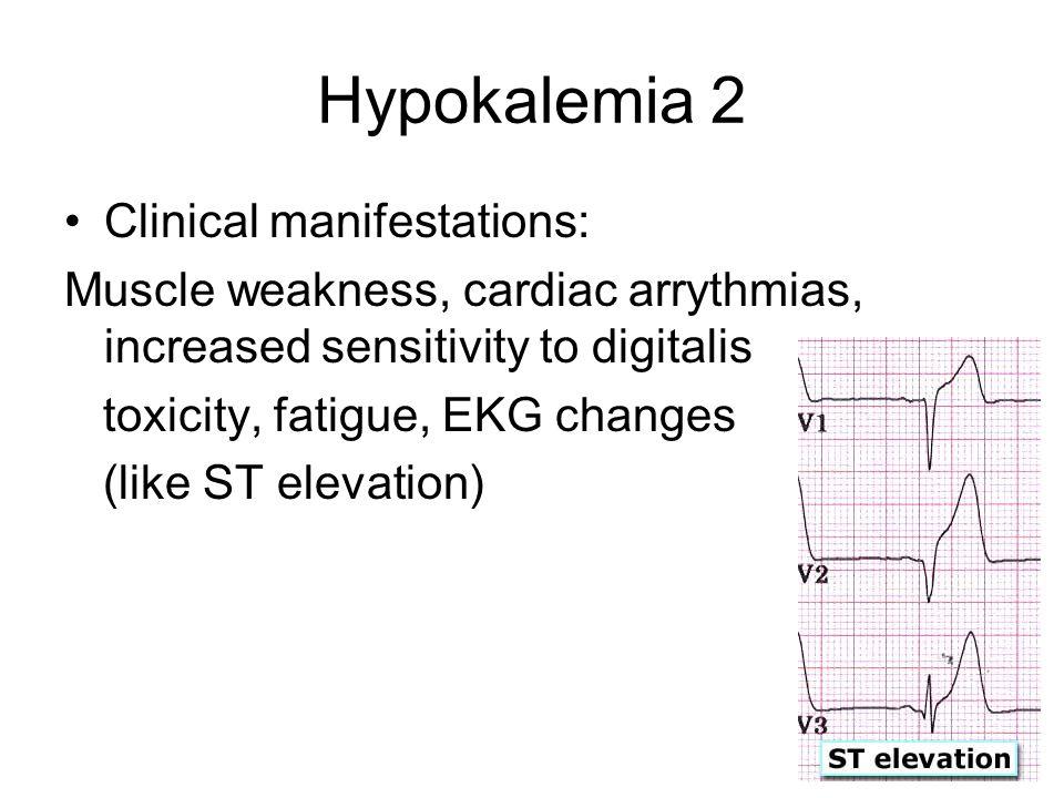 Hypokalemia 2 Clinical manifestations: