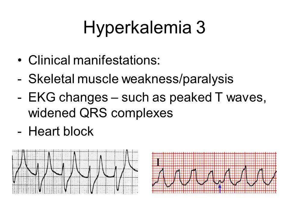 Hyperkalemia 3 Clinical manifestations: