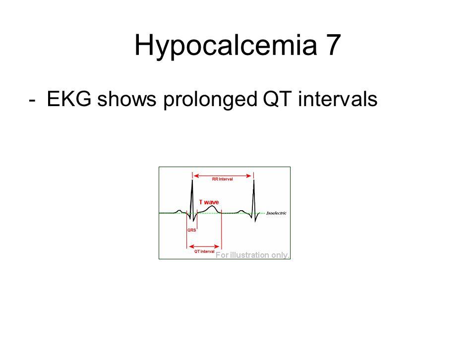 Hypocalcemia 7 EKG shows prolonged QT intervals