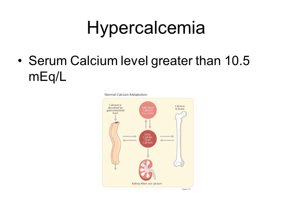 Hypercalcemia Serum Calcium level greater than 10.5 mEq/L
