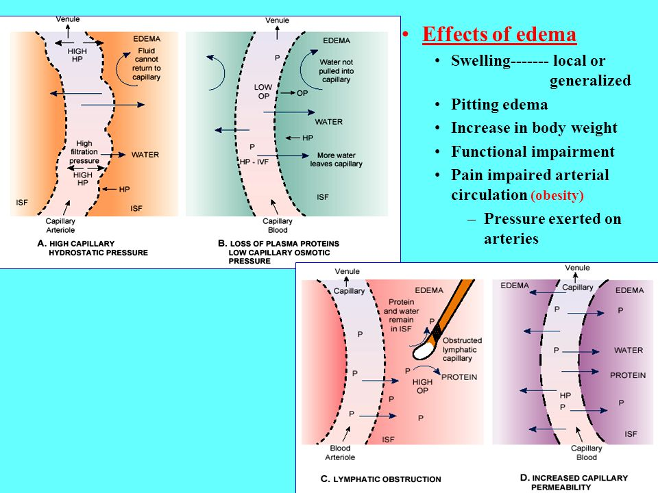 Effects of edema Swelling------- local or generalized Pitting edema