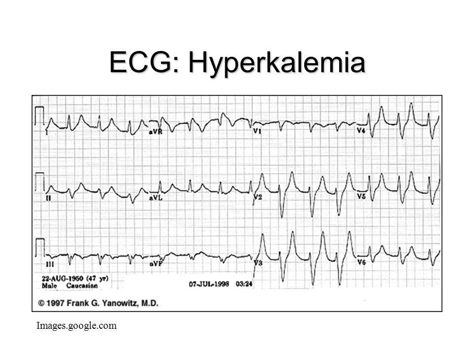 ECG: Hyperkalemia Images.google.com