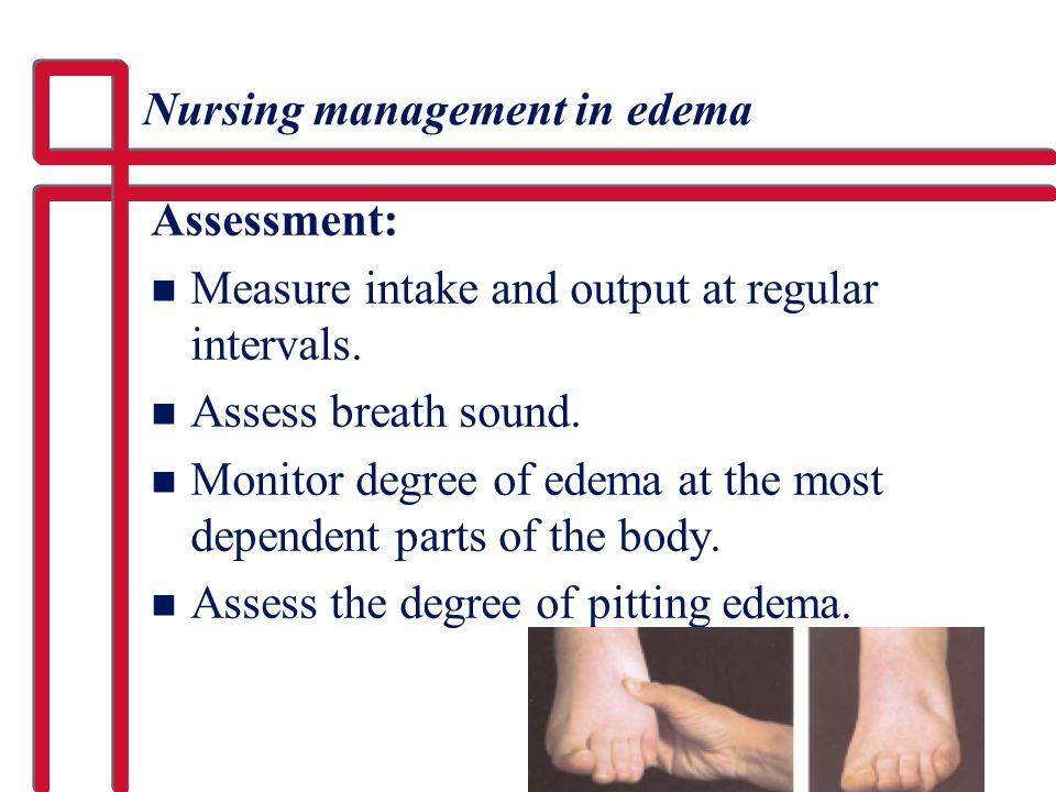 Nursing management in edema