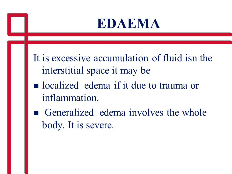 EDAEMA It is excessive accumulation of fluid isn the interstitial space it may be. localized edema if it due to trauma or inflammation.