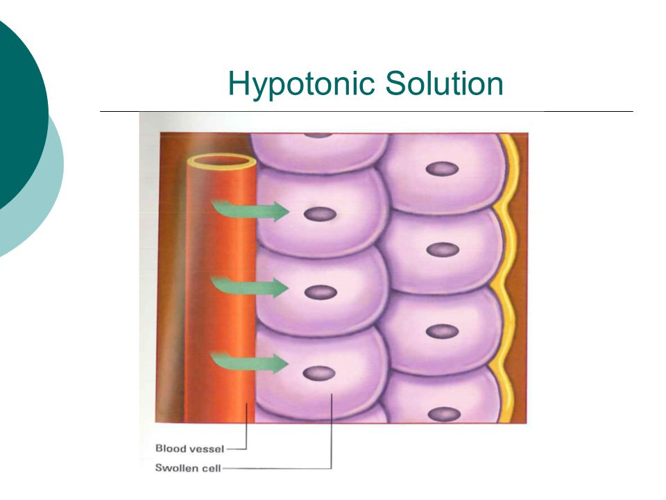 Hypotonic Solution