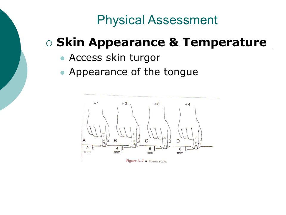 Physical Assessment Skin Appearance & Temperature Access skin turgor