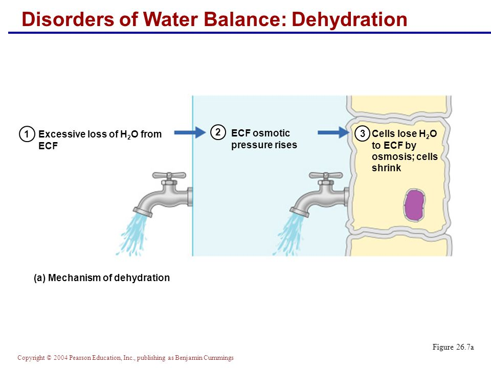 Disorders of Water Balance: Dehydration