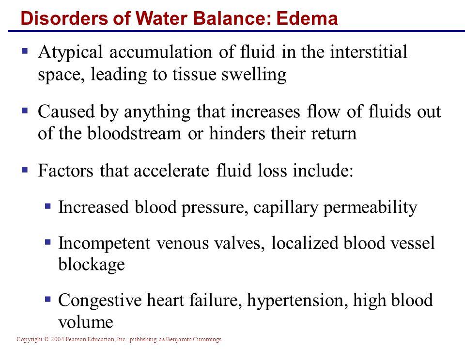 Disorders of Water Balance: Edema