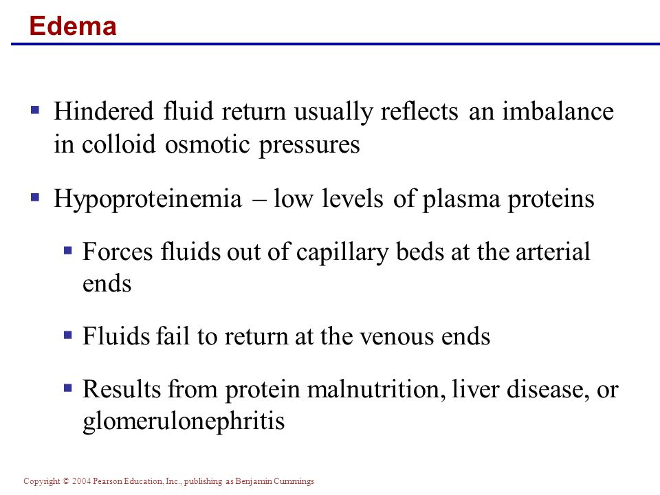 Hypoproteinemia – low levels of plasma proteins