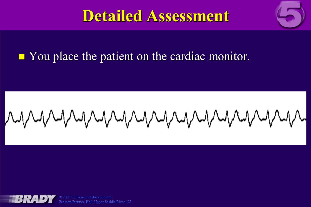 Detailed Assessment You place the patient on the cardiac monitor.