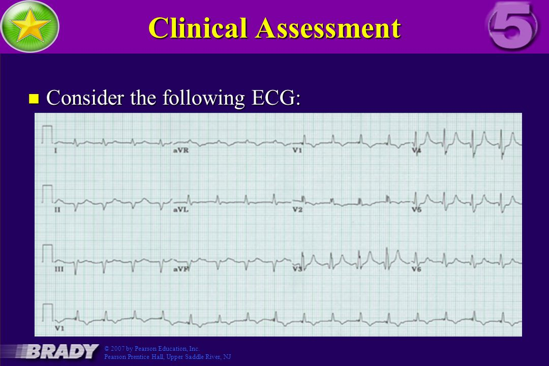 Clinical Assessment Consider the following ECG: Figure 3.5-5