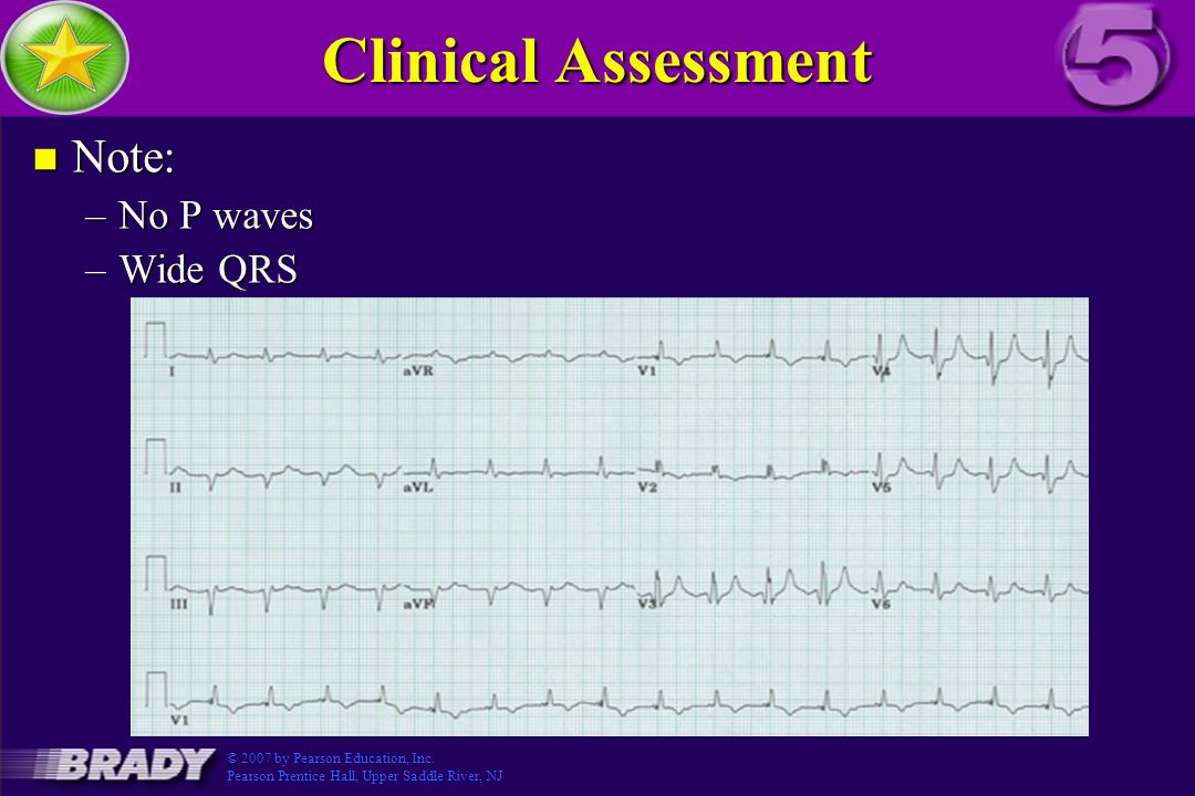 Clinical Assessment Note: Figure 3.5-6 No P waves Wide QRS