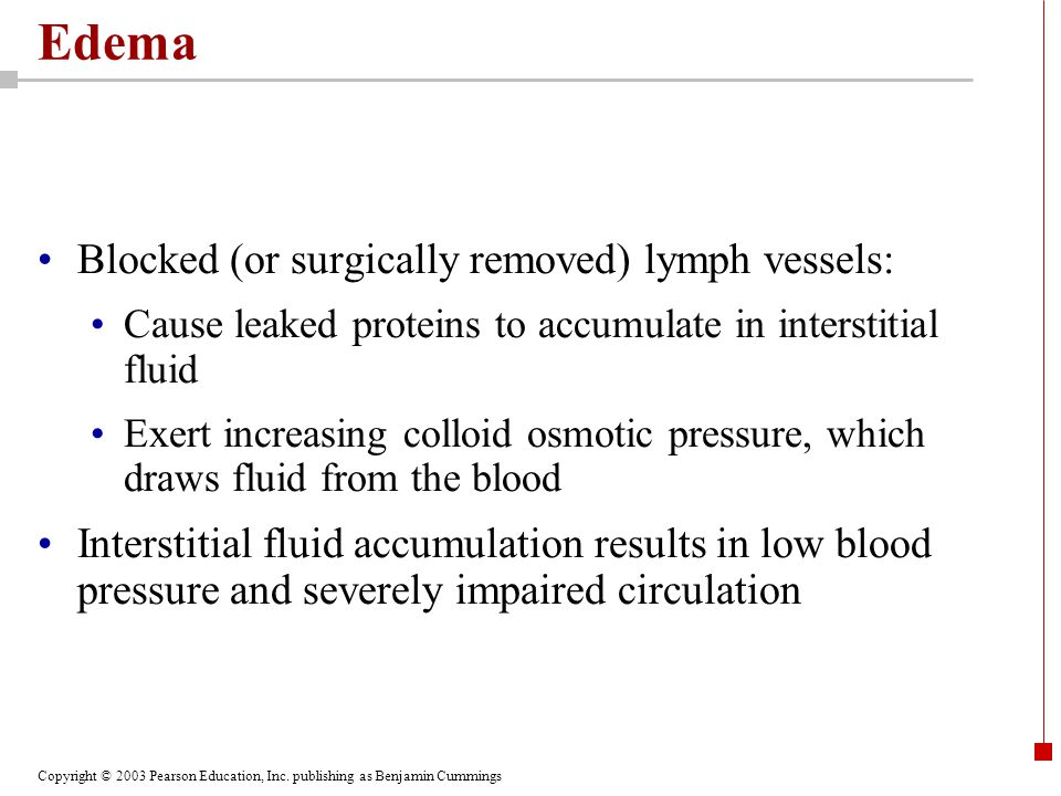 Edema Blocked (or surgically removed) lymph vessels: