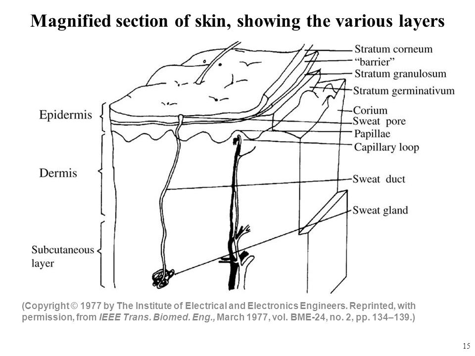 Magnified section of skin, showing the various layers