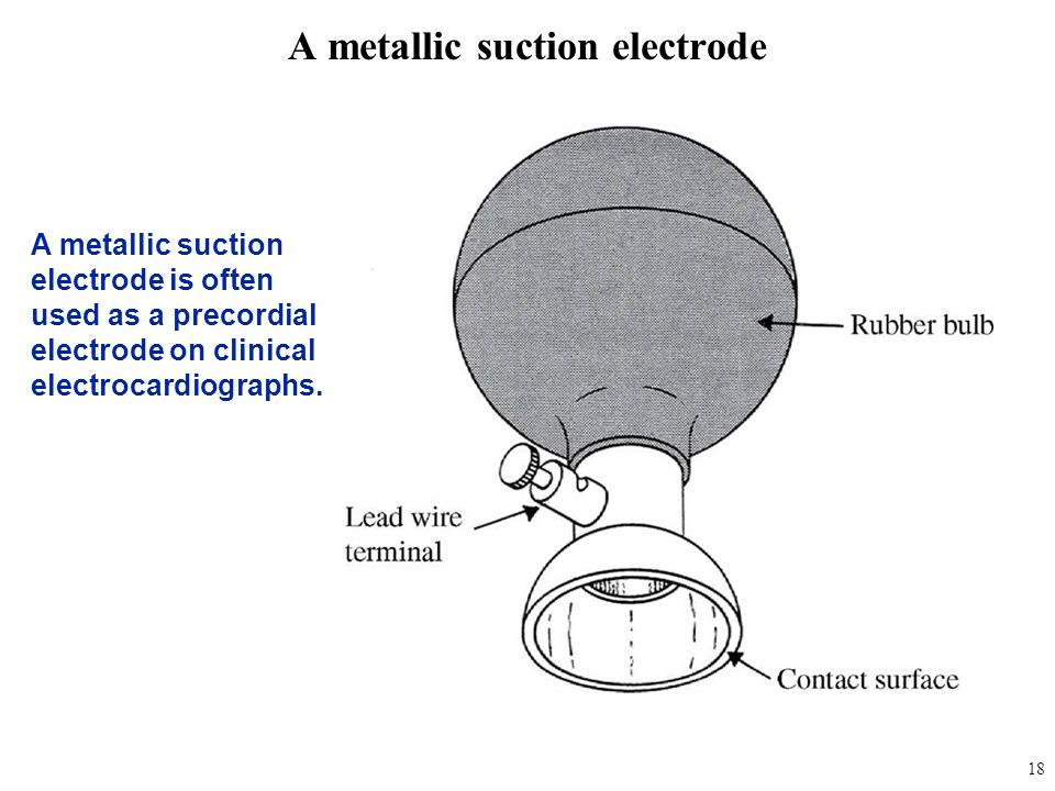 A metallic suction electrode