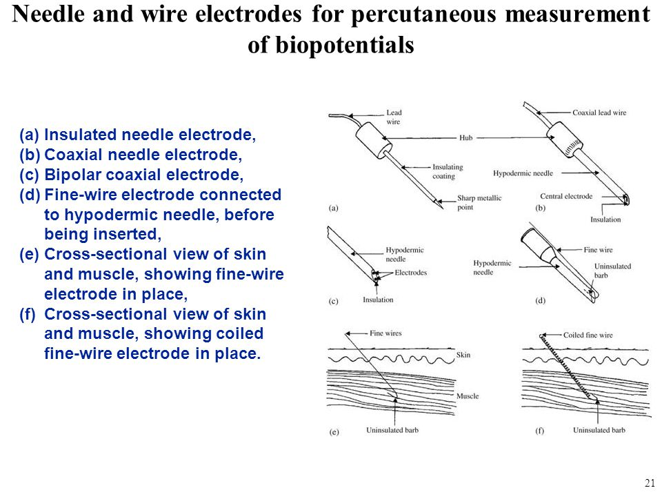 fig_05_13 Needle and wire electrodes for percutaneous measurement of biopotentials. Insulated needle electrode,