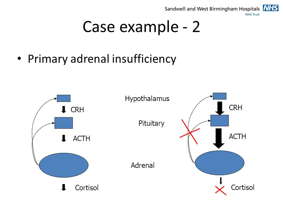 Case example - 2 Primary adrenal insufficiency Hypothalamus CRH CRH
