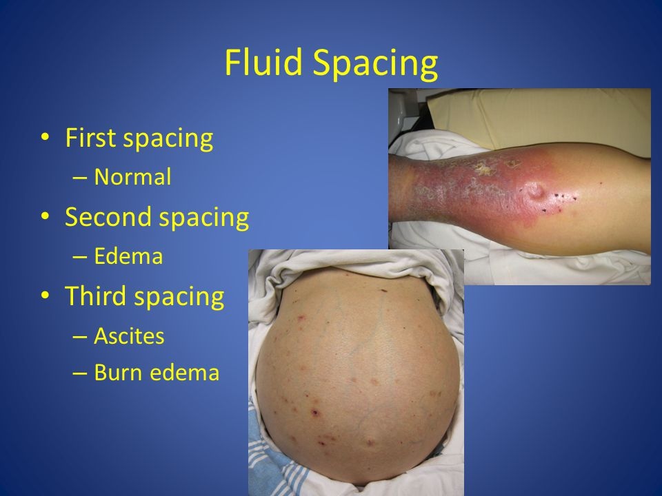 Fluid Spacing First spacing Second spacing Third spacing Normal Edema