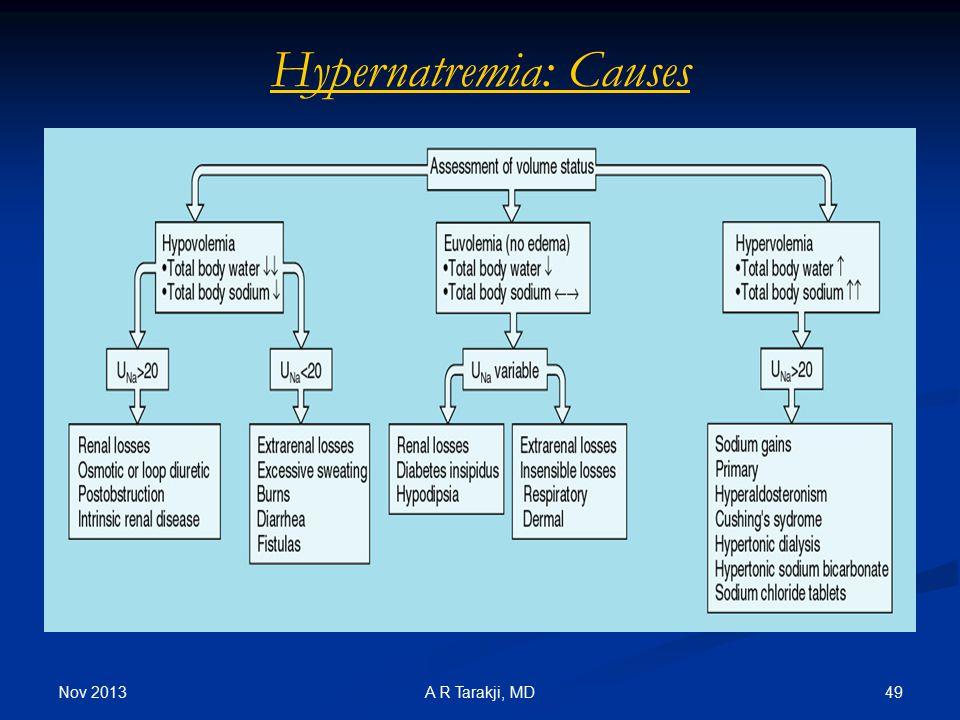 Hypernatremia: Causes