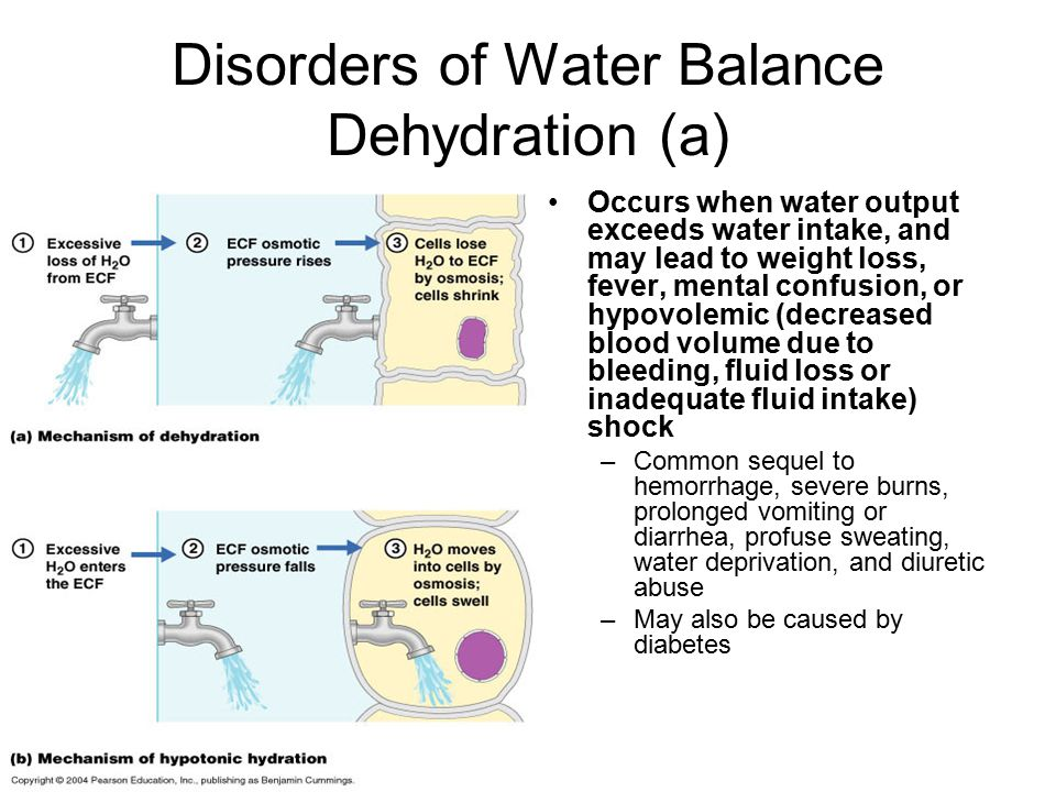 Disorders of Water Balance Dehydration (a)