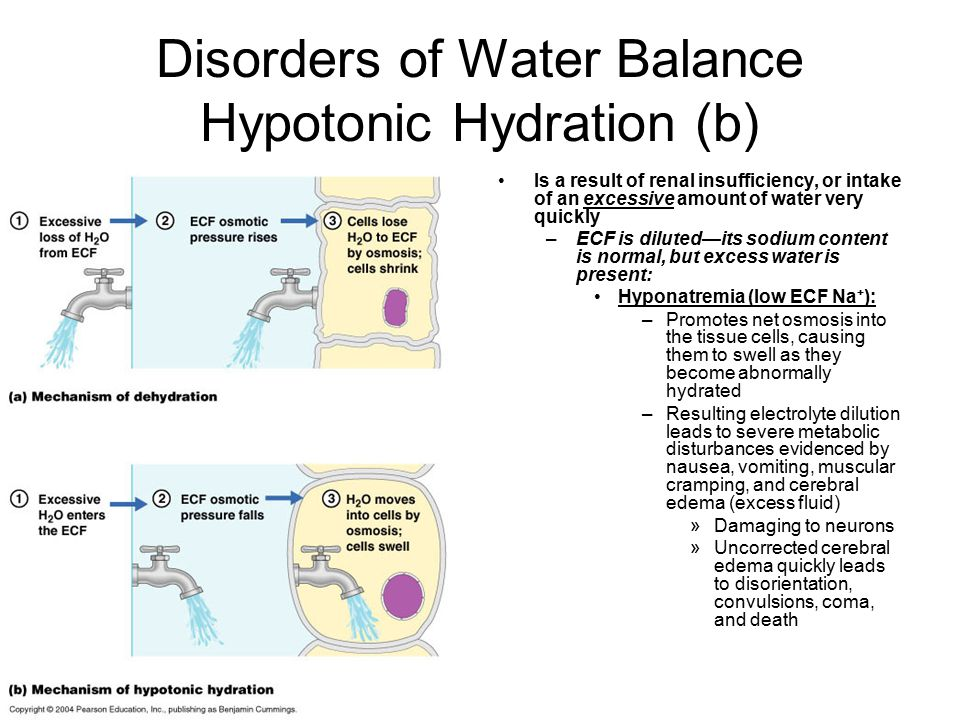 Disorders of Water Balance Hypotonic Hydration (b)