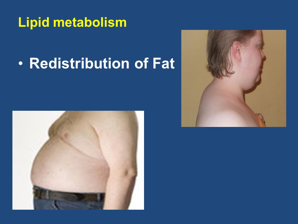 Lipid metabolism Redistribution of Fat