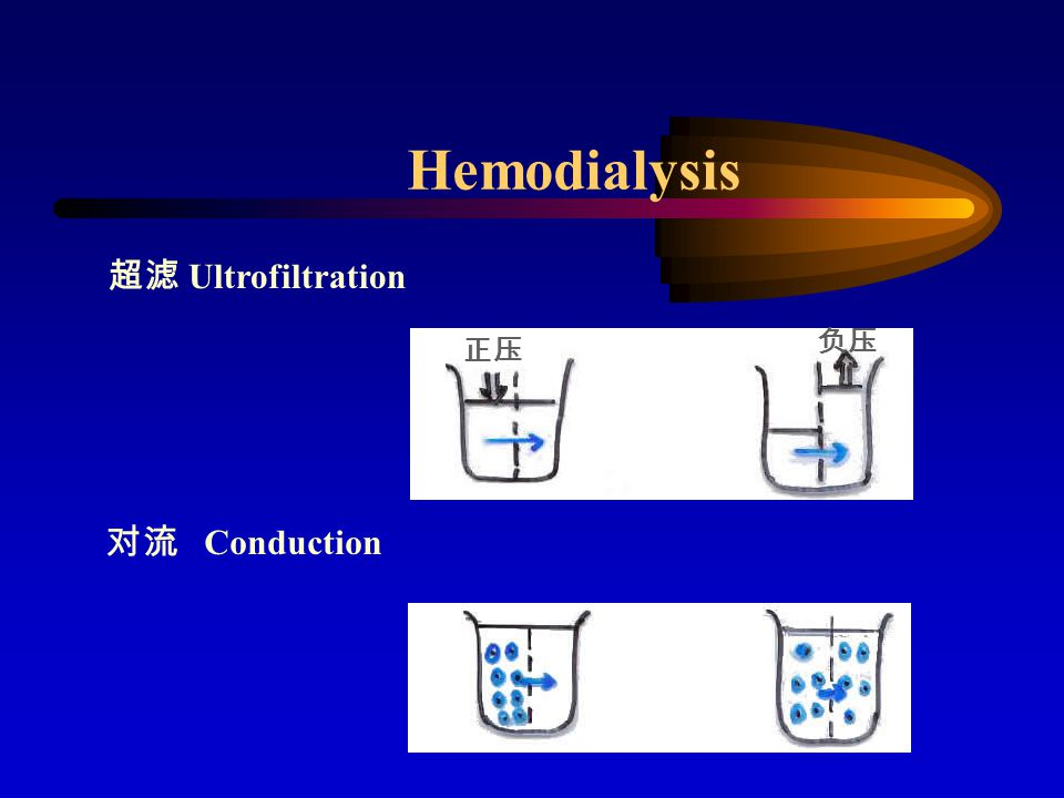 Hemodialysis 超滤 Ultrofiltration 负压 正压 对流 Conduction