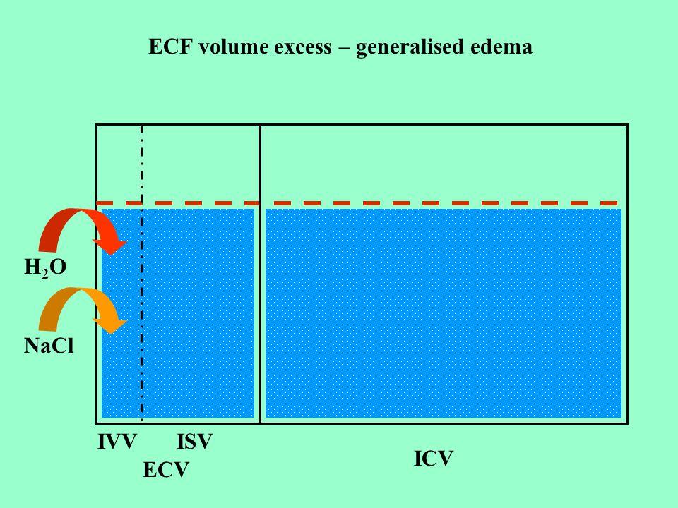 ECF volume excess – generalised edema