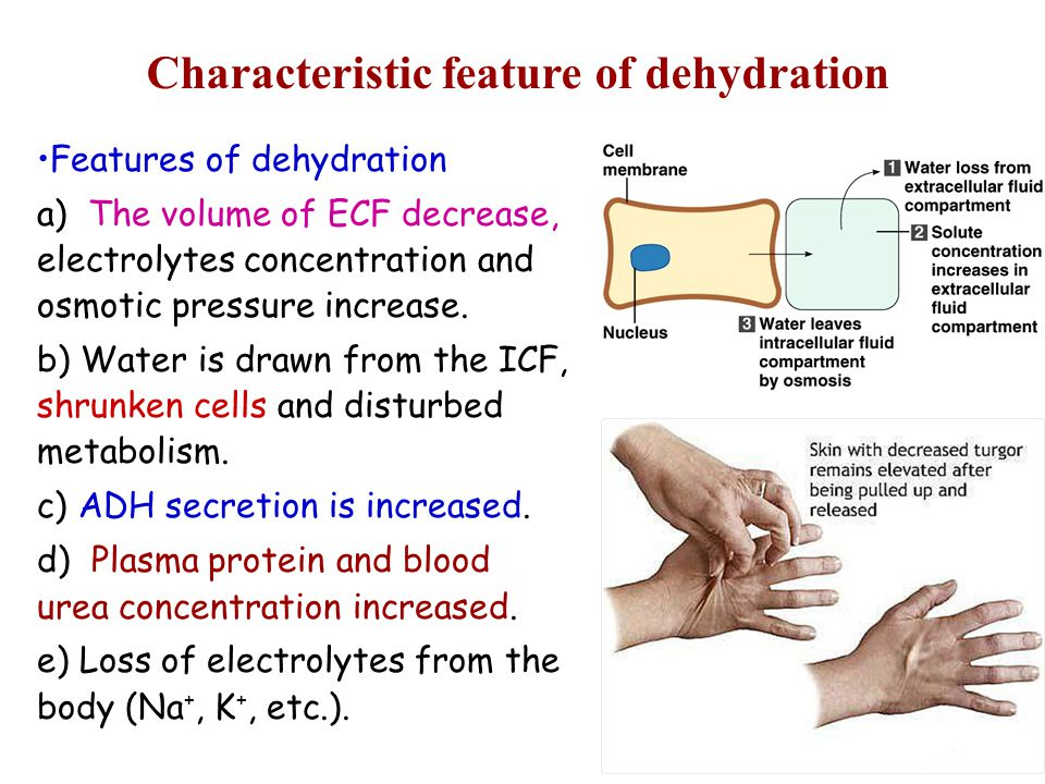 Characteristic feature of dehydration