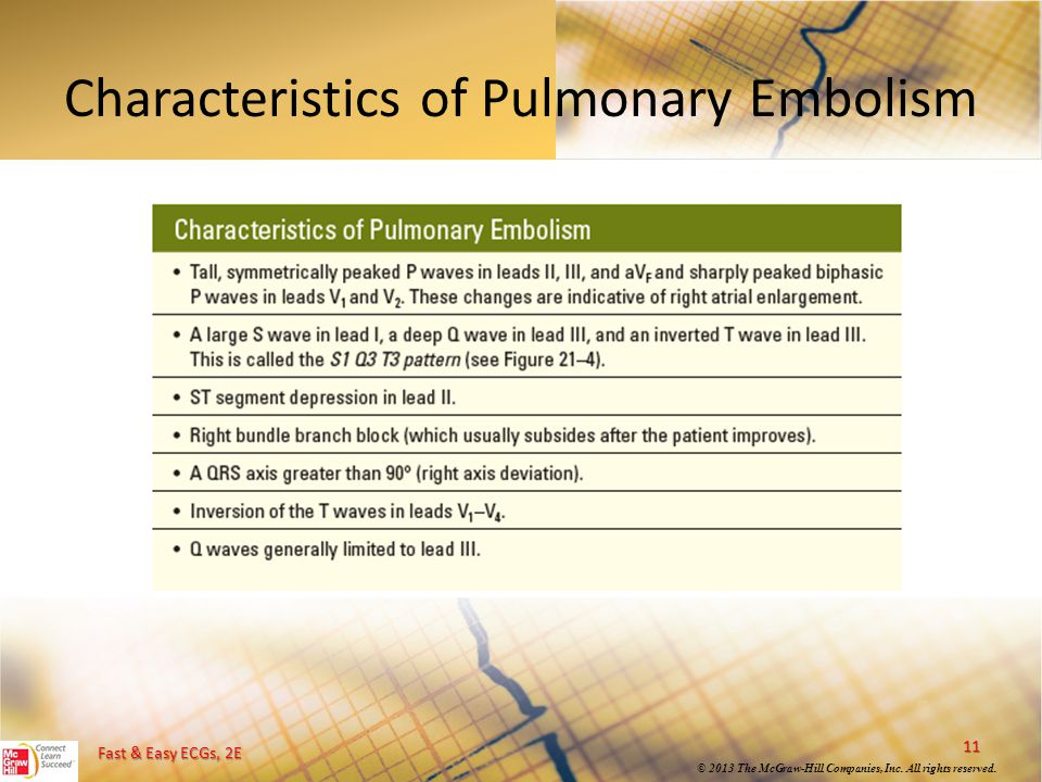 Characteristics of Pulmonary Embolism