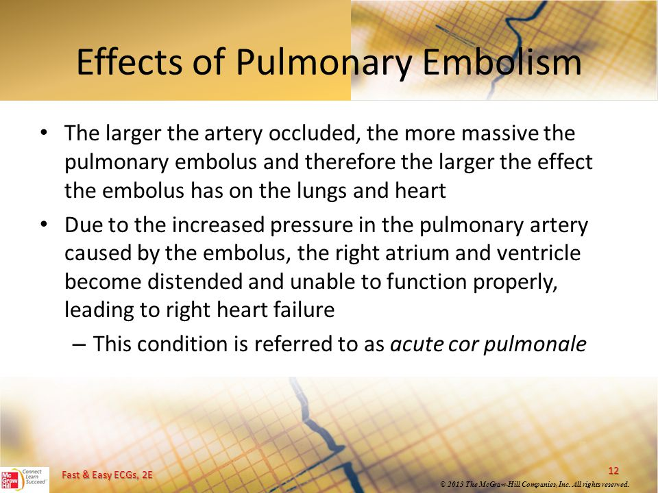 Effects of Pulmonary Embolism