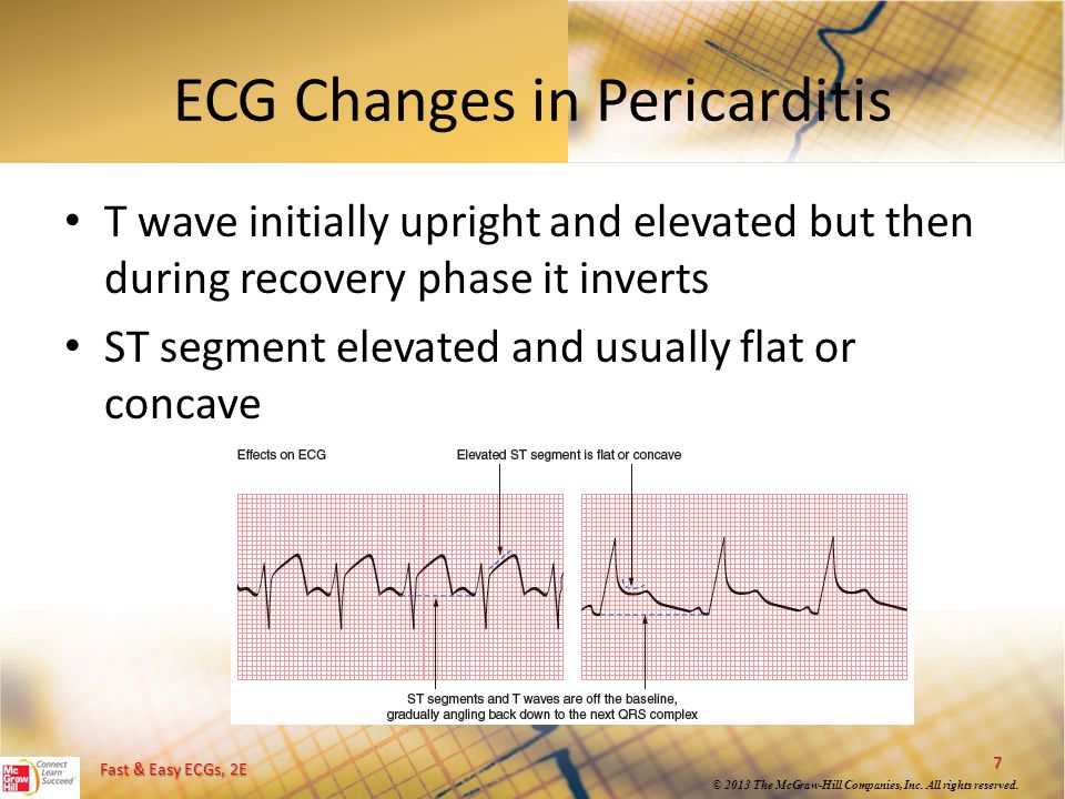 ECG Changes in Pericarditis