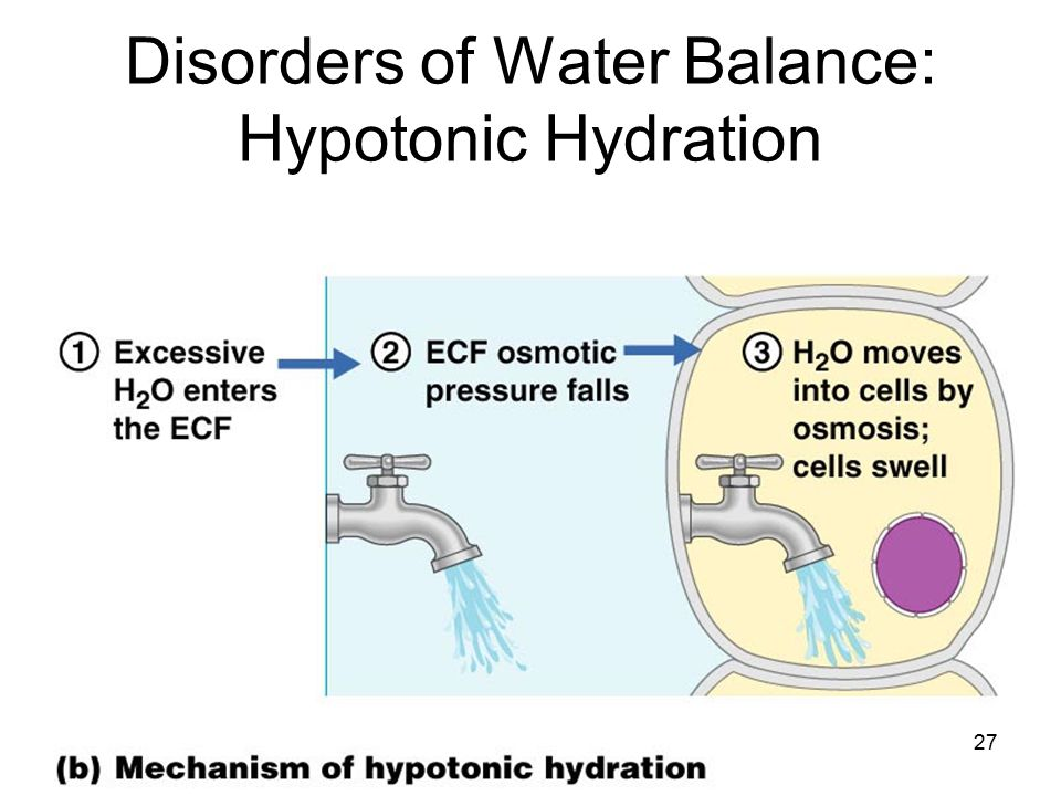 disorders of water balance Disorders of water balance: hyponatremia romulo e colindres i objectives by the end of the lecture, students should have an understanding of the following concepts.