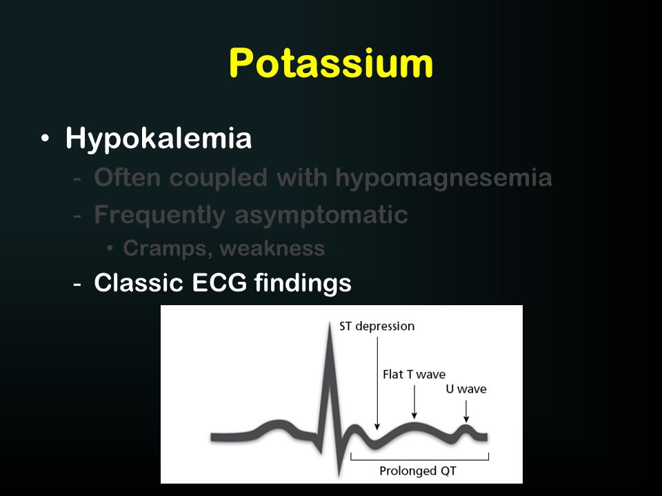 Potassium Hypokalemia Often coupled with hypomagnesemia
