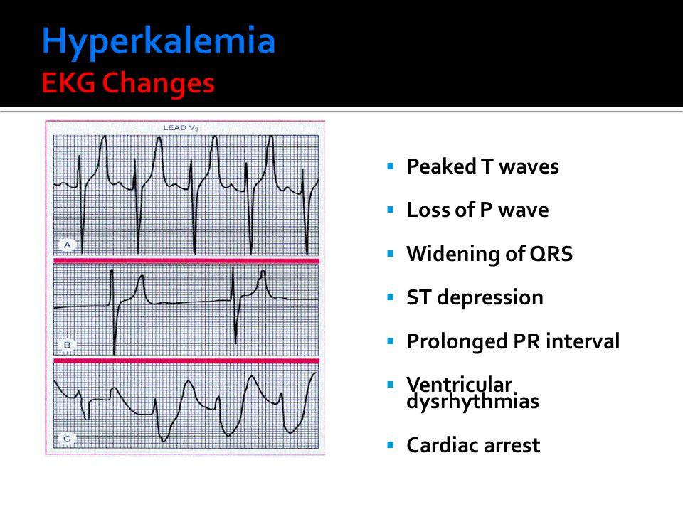 Hyperkalemia EKG Changes