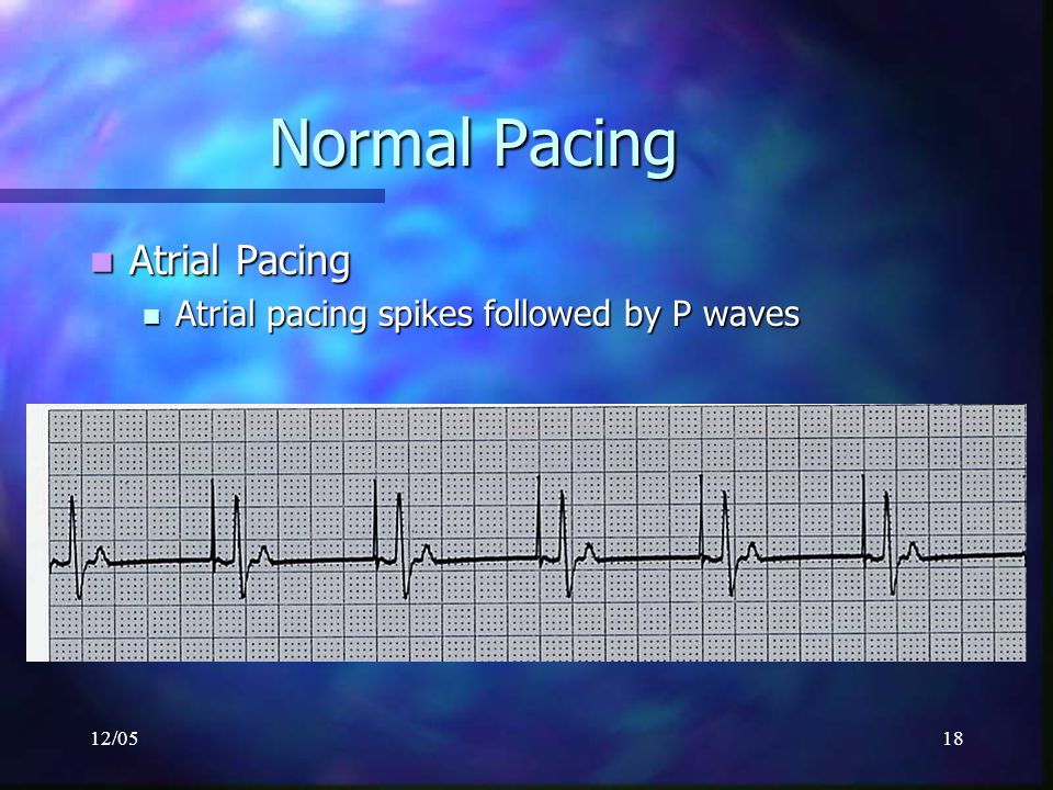Normal Pacing Atrial Pacing Atrial pacing spikes followed by P waves