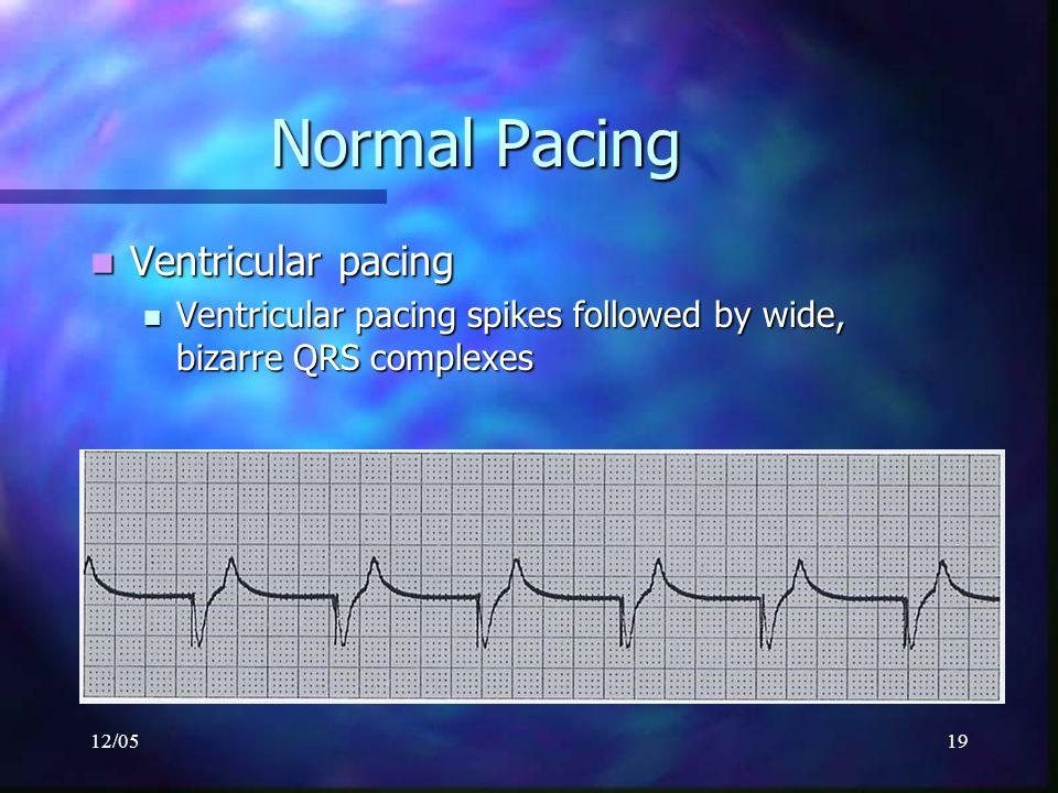 Normal Pacing Ventricular pacing