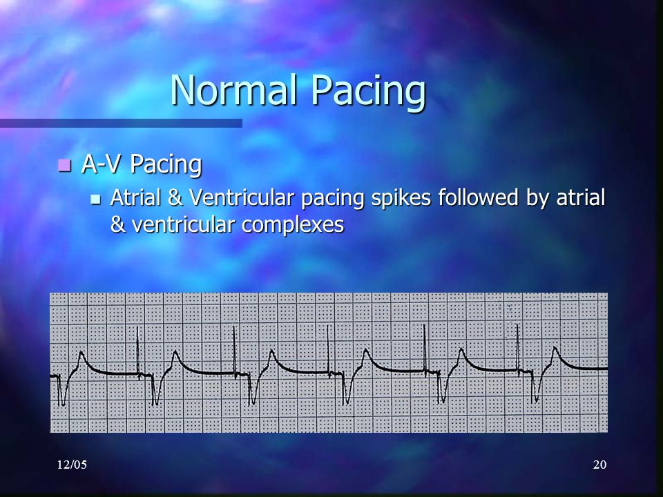 Normal Pacing A-V Pacing